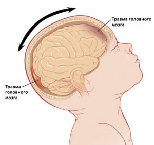 травма мозку при синдромі струшування дитини (Shaken baby syndrome)