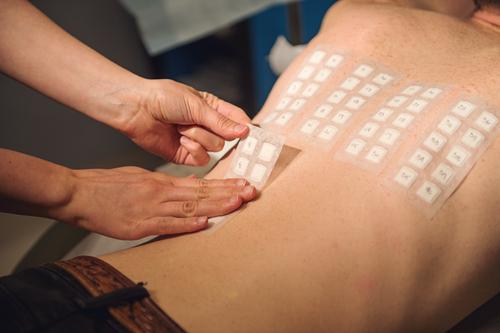 патч-тест - диагностика аллергии замедленного типа
